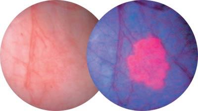 carcinoma prostata resezione parziale della del